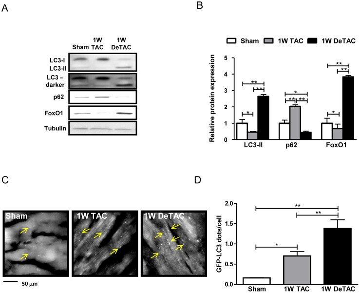 Autophagy and FoxO1 expression are upregulated during regression of cardiac hypertrophy. Control C57BL/6 and Tg-GFP-LC3 mice were subjected to sham, 1W TAC and 1W DeTAC surgeries. A) Representative immunoblots of autophagy markers and FoxO1 from mouse hearts. B) Densitometric analyses. C) Representative images of fluorescent LC3 puncta in hearts from Tg-GFP-LC3 mice. Arrows indicate LC3 puncta. D) Mean number of GFP-LC3 dots/cell. Data represent means from at least 3 mice each. * p