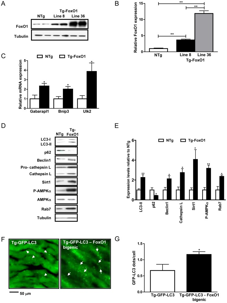 Overexpression of FoxO1 regulates autophagy in vivo. Transgenic mice with cardiac-specific overexpression of WT-FoxO1 (Tg-FoxO1) were generated. A) Representative immunoblots comparing FoxO1 expression levels in the two lines (lines #8 and #36) of Tg-FoxO1 and nontransgenic (NTg) mice. B) Densitometric analyses. C) mRNA levels of autophagy genes Gabarapl1, Bnip3 and Ulk2. D) Representative immunoblots of autophagy markers. E) Densitometric analyses. F–G) Tg-FoxO1 mice were bred with Tg-GFP-LC3 to generate Tg-GFP-LC3 – FoxO1 bigenic mice. F) Representative images of GFP-LC3 puncta. Arrows indicate LC3 puncta. G) Mean number of GFP-LC3 dots/cell. Data represent means from at least 4 individual mice. * p