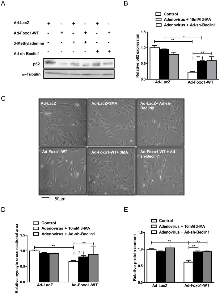 Autophagy inhibition attenuates <t>FoxO1-induced</t> reduction in cell size and relative protein content. Cultured cardiomyocytes were transduced with Ad-FoxO1-WT or Ad-LacZ for 24 hours or Ad-sh-Beclin1 for 96 hours, and treated with 10 mM 3-methyladenine (3-MA) for 24 hours. A) Representative immunoblots. B) Densitometric analyses. C) Representative images of cardiomyocytes viewed under a light microscope. D) Relative cardiomyocyte cross-sectional area. E) Relative protein content. Data represent means from at least 6 different myocyte cultures. * p