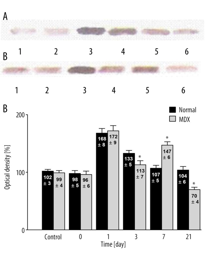 ( A ) Western analysis of VEGF expression in the heart following hypoxia normal mice. Control group (1); immediately after (2); 1 d ay after (3); 3 days after (4); 7 days after (5), and 21 days after (6) hypoxia. ( B ) Western analysis of VEGF expression in the heart following hypobaric hypoxia in dystrophic mice. Control group (1); immediately after (2); 1 day after (3); 3 days after (4); 7 days after (5), and 21 days after (6) hypoxia. ( C ) Quantitative analysis of western blot signals in normal and mdx mice. Note the difference in the timing of maximum VEGF expression between normal and mdx mice. The control group signal is set to 100%. * Statistically significant compared to healthy mice. In each group was 10 mice.