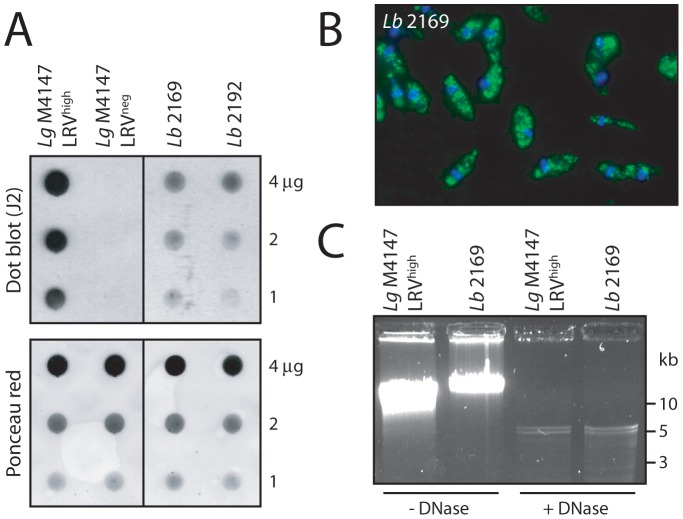 Screening for LRV in freshly-isolated human L. braziliensis . A. Dot blot analysis of two parasite samples obtained from separate lesion biopsies in an infected patient: Lb 2169 and Lb 2192. Live parasites (1 to 4 µg total proteins) were spotted on a nitrocellulose membrane for LRV dsRNA detection by dot blot (J2 antibody). Lg M4147 LRV high and LRV neg were used as positive and negative controls. Upper panel: dsRNA detection by dot blot (J2). Lower panel: verification of protein quantity by Ponceau staining. B. J2 anti-dsRNA analysis of Lb 2169 by fluorescence microscopy. Green: dsRNA (J2 Ab). Blue: DAPI. C. Isolation of viral genomic dsRNA from the Lb 2169 strain. Intact and DNase-digested total nucleic acids from Lb 2169 parasites and Lg M4147 LRV high as a control, were analyzed by gel electrophoresis (similarly to Figure 1A ). Note: with high resolution gels such as presented here (in contrast to Figure 1 ), the viral genome often appears as a doublet.