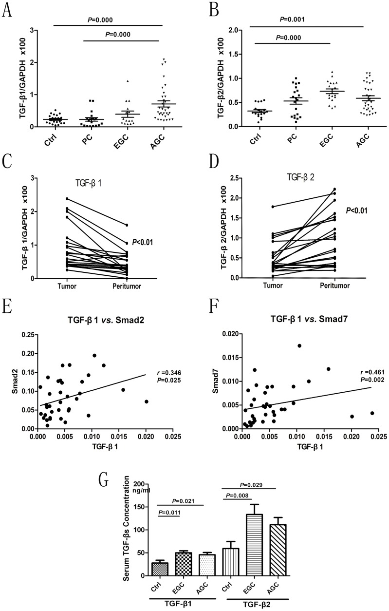 TGF-β1 and TGF-β2 mRNA profiles in gastric precancer and carcinoma. (A) TGF-β1 mRNA levels in the sequence from controls ( n = 20), precancer (PC) ( n = 21), early gastric cancer (EGC) ( n = 22), to advanced gastric cancer (AGC) ( n = 30). Data are given as means ± SD of transcript levels normalized to GAPDH. (B) Corresponding TGF-β2 mRNA levels in the same sequence. (C) and (D) TGF-β1 levels were upregulated and TGF-β2 levels were downregulated in tumor tissues, compared to peritumoral tissues from the same patients. Levels were normalized to GAPDH. Data from qRT-PCR in 20 paired cases are shown. (E) and (F) Significant positive correlations between TGF-β1 and Smad2/Smad7, using a bivariate correlation model. Data represent the transcript levels in 36 cases of GC after normalization to GAPDH. (G)Serum concentrations of TGF-β1 and TGF-β2 measured by ELISA were significantly higher in early and advanced GC compared to controls ( F = 4.745 and P = 0.018; F = 4.939 and P = 0.015, respectively). There was no significant difference between early and advanced GC. Ctrl : controls volunteers; EGC : early gastric cancer; AGC : advanced gastric cancer.