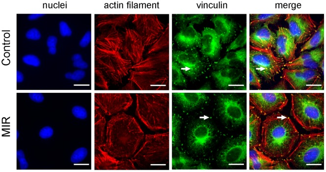 Effect of MIR exposure on the actin filaments and focal adhesions of A549 cells. Cells were seeded onto glass coverslips in 12-well plates, exposed to MIR for 48 hours, fixed for staining and visualized by fluorescence microscopy. Actin filaments were tagged with rhodamine-labeled phalloidin (red), vinculin was labeled with mouse anti-vinculin antibody and the corresponding FITC– conjugated secondary anti-mouse IgG antibody (green), and nuclei were stained with DAPI (blue). Scale bar represents 10 µm. Arrows indicate the position of vinculin.