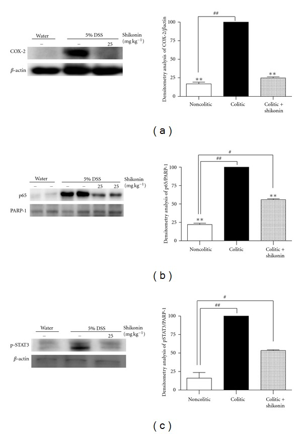 Effects of shikonin on cyclooxygenase-2 expression and on nuclear translocation of p65 and phosphorylated signal transducer and activator of transcription 3. The left panels show an example of western blot following probing with the corresponding antibody. The histograms at the right represent the data derived from the western blots following densitometry analysis. Levels were normalized against  β -actin or PARP-1 antibody. ** P