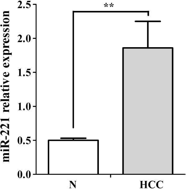 MiR - 221 relative expression in HCC FFPE samples. MiR-221 levels accessed by real time RT-qPCR in HCCs and their adjacent noncancerous liver tissues. N: noncancerous liver tissues. ** P