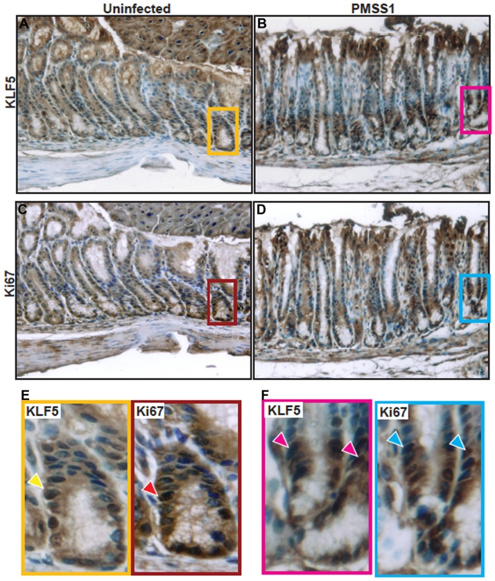 KLF5 and Ki67 co-localize to the isthmal region. KLF5 and Ki67 immunohistochemistry staining was assessed on murine gastric tissue sections from uninfected mice (A and C) or H. pylori PMSS1-infected mice (B and D) at 400× magnification. Insets demonstrate regions of KLF5 and Ki67 co-localization (arrows) within the isthmal regions of the gastric epithelium (E and F). Nuclei are stained in blue.