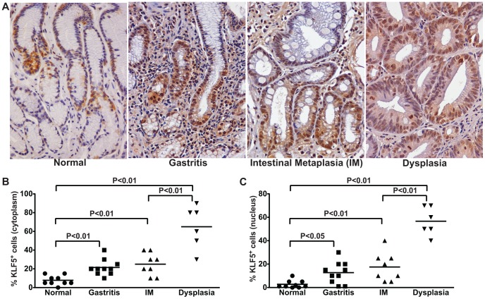 KLF5 expression parallels the severity of gastric premalignant lesions in H. pylori -infected humans. (A) KLF5 expression was evaluated by immunohistochemistry in a human population at high risk for gastric cancer. Gastric biopsies from uninfected patients with normal gastric mucosa and H. pylori -infected patients with non-atrophic gastritis, intestinal metaplasia (IM), and dysplasia were evaluated for KLF5 immunostaining at 200× magnification. (B and C) A single pathologist assessed the percentage of KLF5 + cells exhibiting cytoplasmic (B) or nuclear (C) staining. Each data point represents an individual biopsy and mean values are shown. The percentage and mean value of KLF5 + cells from biopsies from patients with normal gastric tissue (circles), gastritis (squares), intestinal metaplasia (IM, triangles), and dysplasia (inverted triangles) are shown. Mann-Whitney and ANOVA tests were used to determine statistical significance between groups.