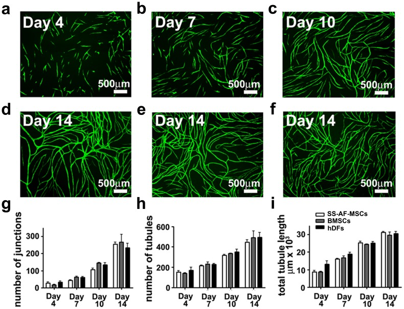 SS-AF-MSCs support neovascularisation in vitro – comparing the dynamics of vessel formation in the presence of SS-AF-MSCs, hDFs or BMSCs. (a-f) Representative fields of vascular tubules after (a) 4, (b) 7, (c) 10, and (d to f) 14 days of co-culture of eGFP UCB ECFC derived cells with (a to d) SS-AF-MSCs, and pre-selected optimized batches of (e) BMSCs or (f) hDFs respectively. Scale bar = 500 µm. (g-i) Quantification of vascular tubule phenotypes at days 4, 7, 10 and 14, showing no significant difference in the number of junctions, tubules and total tubule length during the 14 days of co-culture between the 3 stromal cell types (p > 0.05 Student's t test). Values are means±S.D. for three independent experiments.