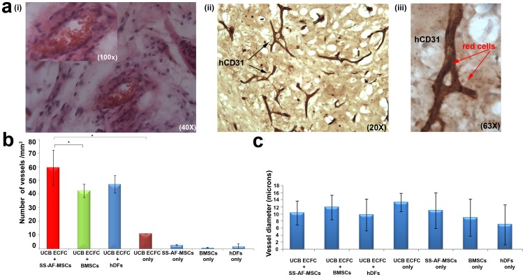Quantitating vessel formation in in vivo studies. (a) Histological evaluation of vessels containing SS-AF-MSCs and UCB ECFC derived cells, harvested 14 days post-implantation and stained (i) with hematoxylin/eosin and for (ii-iii) human CD31 antigen (brown stain). High-power view of a vessel containing red blood cells (arrowed) from (ii) is shown in (iii). (b) Microvessel density in matrigel implants containing combined SS-AF-MSCs, BMSCs or hDFs with UCB ECFC derived cells, SS-AF-MSCs only, BMSCs only, hDFs only or UCB ECFC derived cells only. Vessel number (vessels/mm 2 ) was estimated using Image J 1.38× software. Statistical analysis was performed using Student's t test. (c) Vessel diameter estimation in matrigel implants containing SS-AF-MSCs, BMSCs or hDFs and UCB ECFC derived cells, SS-AF-MSCs only, or UCB ECFC derived cells only using Image J 1.38× software, (*p