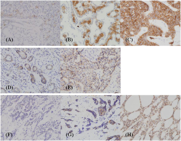 Immunohistochemical staining of adenoid cystic carcinomas of the salivary gland. C-kit (CD 117) expression of weakly (1+, A ), moderately (2+, B ), and strongly positive (3+, C ) cases; EGFR (epidermal growth factor receptor) expression of weakly (D) and moderately positive (E) cases; VEGF (vascular endothelial growth factor) expression of weakly (F) , moderately (G) , and strongly positive (H) cases. Expressions of c-kit (membranous/cytoplasmic), EGFR (membranous), and VEGF (cytoplasmic) were scored as follows: 0, reactivity in