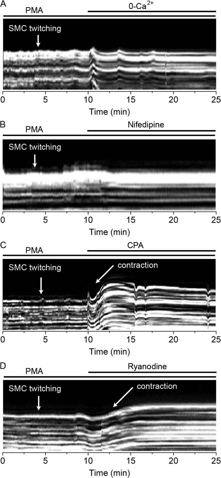 Effect of extracellular Ca 2+ removal, nifedipine, CPA, and ryanodine on PMA-induced airway SMC twitching. Line scans from airway wall regions obtained from phase-contrast images (similar to that presented in Fig. 1 ) showing airway SMC twitching induced by 10 µM PMA (added 30 min before the recordings started) and their sensitivity to: (A) Ca 2+ -free sHBSS, (B) 10 µM nifedipine, (C) 10 µM CPA, or (D) 25 µM ryanodine. PMA-induced SMC twitching was inhibited by removal of extracellular Ca 2+ , nifedipine, CPA, and ryanodine. Each line scan is representative of three experiments in lung slices from two mice.