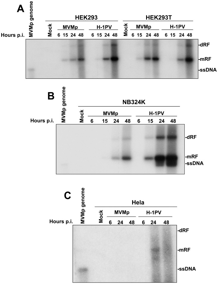Replication of MVMp and H-1PV in human transformed or tumor cell lines. HEK293 and HEK293T (A), NB324K (B) and Hela (C) cells were mock-treated or infected with MVMp or H-1PV at 5 PFUs/cell. At the indicated time post-infection (p.i.) cells were harvested and DNA was extracted according to a modified Hirt procedure (see Materials and Methods ). Samples were then digested with proteinase K and 2 µg of DNA from each sample was then subjected to eletrophoresis through a 0.8% agarose gel and further transferred by capillarity on a Hybond-N membrane. Expression of DNA intermediates was investigated using a mixture of radiolabeled DNA probes corresponding to the E co RI-E co RV and H ind III-H ind III fragments of the viral NS genes from MVMp and H-1PV, respectively. Assessment of the migration of MVMp isolated genomes (0.08 µg) was used in each blot as migration control of the different DNA intermediates; mRF, monomeric replicative form; dRF, dimmer replicative form; ssDNA, single-stranded genome. The blots shown are representative of 3 experiments which all gave similar results.