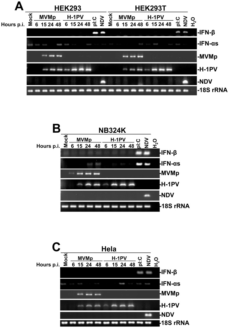 Time-dependent transcriptional up-regulation of type-I IFN encoding mRNAs in MVMp- or H-1PV-infected human cell lines. ( A ) HEK293 and HEK293T, ( B ) NB324K and ( C ) Hela cells were mock-treated for 24 hrs, infected with parvoviruses (5 PFUs/cell) for the indicated times, or infected with NDV (6 HU/10 6 cells) or transfected with pI:C (2 µg/ml) for 15 hrs. At the indicated times, cells were harvested and total RNAs were extracted using the RNeasy kit. One µg was then reverse transcribed into cDNA and 10% of this product was subjected to PCR reactions using sets of primers specific to each indicated cytokine mRNA or viral transcripts. PCR product of 18S ribosomal RNA was used as housekeeping gene to normalize loading. No signal was detected in the samples when omitting the reverse transcriptase. Presented data are representative of 3 experiments which all gave similar results.