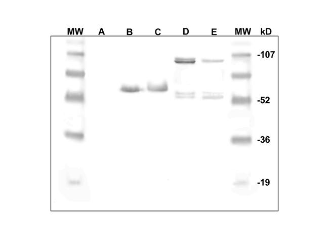 Immunodetection of DlEPV proteins in whole body homogenates (5µl) of male (B) and female (C) D. longicaudata. Molecular mass in kiloDaltons (kD). Unparasitized (A) and 48h-52 h-old parasitized (96 hpp) (E) respectively, pharate pupal hemolymph of A. suspensa . D= Purified DlEPV from one 53–55% sucrose fraction. One major (or two closely migrating) band(s) of H
