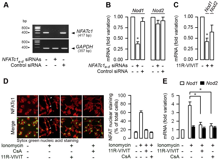 NFATc1 controls Nod1 mRNA expression in macrophages. (A) Representative reverse transcription-PCR of the inhibition of NFATc1 in BMMs transfected with a multiple set (n = 4) of NFATc1 a–d siRNAs compared to non-transfected BMMS or with cells transfected with a negative control (Control) siRNA. GAPDH mRNA expression was used as internal control. (B and C) Fold variation of Nod1 and Nod2 mRNAs measured by quantitative real time PCR in BMMs transfected with the set of NFATc1 a–d siRNAs, or with a negative control (Control) siRNA and compared to non-transfected BMMs (B), and in BMMs incubated with or without 1 µM 11R-VIVIT for 48 h (C) (n = 3 independent experiments in each condition tested). (D) Nucleo-cytoplasmic distribution of the NFATc1 immunostaining (shown in red) (left panel) and percentage of NFATc1 immunostaining co-localized with Sytox green nuclear acid staining ( n = 7–13 nuclei analyzed for each condition from two separate experiments) (right panel) in WT BMMs sequentially incubated without or with 11R-VIVIT or 10 −7 M CsA for 48 h, then without or with 2 µM ionomycin for additional 60 min. Bar = 10 µm. (E) Fold variation of Nod1 and Nod2 mRNAs expression over corresponding β-actin mRNA measured by quantitative real-time PCR in WT BMMs incubated or not with 11R-VIVIT or CsA for 48 h, then with or without 2 µM ionomycin. ( n = 3 independent experiments). *, p
