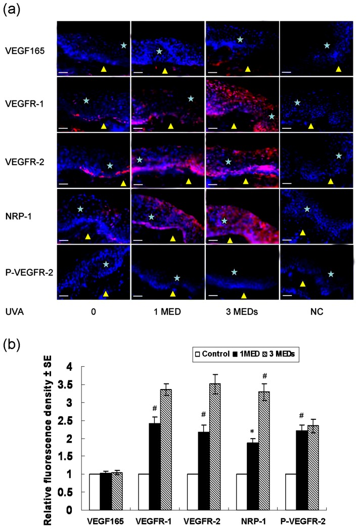 Immunofluorescence detection of VEGF, VEGFRs and P-VEGFR-2 regulated by UVA in normal human epidermis. (a) Expression and localization of VEGF165, VEGFR-1, VEGFR-2, NRP-1 and P-VEGFR-2 by immunofluorescence regulated by UVA in normal human epidermis. (b) The fluorescence density analysis of (a). Skin samples from 5 independent individuals were used for quantification. Biopsies were taken 24 h after treatment of 0, one MED, and three MEDs of UVA respectively. The presence of VEGF165 and VEGFRs was indicated by red fluorescence. The presence of P-VEGFR-2 was indicated by green fluorescence. The cellular nuclei were counterstained with DAPI (blue nuclear signal). P-VEGFR-2, phospho-VEGFR-2 (Tyr1175); UVA: UVA; MED, minimal erythema dose; NC, negative controls, which were incubated with non-immune mouse IgG. Bars: 50 µm; Asterisk, epidermis; Yellow triangle, dermis; * P