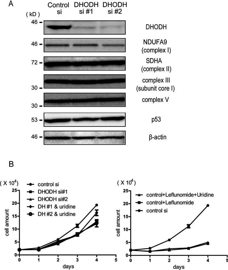 Effects of siRNA-mediated knockdown of DHODH ( A ) HeLa cells were transfected with control siRNA or two independent DHODH siRNAs, #1 and #2, using Oligofectamine™. At 3 days after the transfection, the cells were lysed and immunoblotted with antibodies against DHODH, NDUFA9 (complex I), SDHA (complex II), complex III subunit core I, complex V, p53 and β-actin. ( B ) Depletion of DHODH causes growth retardation. The proliferation rate of siRNA-transfected HeLa cells is shown. HeLa cells were transfected with control or two independent DHODH siRNAs on day 0. At the indicated time, the cells were harvested and counted using a cell counter. Left-hand panel, lines represent control siRNA, DHODH siRNA #1 and DHODH siRNA #2 respectively. Uridine (1 mM) was added on day 0 and day 2 to DHODH-depleted HeLa cells. The cell number was counted at the indicated time after seeding. Right-panel panel, proliferation rate of LFN-treated HeLa cells. HeLa cells were treated with 1 mM LFN on day 0. Uridine was added on day 0 and day 2.