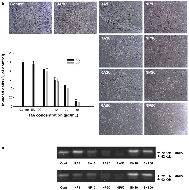 The effect of RA incorporated DexDA-2 nanoparticles on the invasion ( A ) and MMP-2 expression ( B ) of CT26 tumor cells. Notes: Serum free media was treated for control. CT26 cells were exposed to empty nanoparticles, All-trans retinoic acid (RA), and RA-incorporated nanoparticles of DexDA-2 (NP) for 24h. After that, cells were trypsinized, washed with PBS, and seeded onto upper chamber (primarily coated with Matrigel) to invade. Abbreviations: RA, all- trans retinoic acid; DexDA, deoxycholic acid-conjugated dextran; EN10, empty nanoparticles of DexDA-2, 10 μg/mL; EN100, empty nanoparticles of DexDA-2, 100 μg/mL; RA1, RA 1 μg/mL; RA10, RA 10 μg/mL; RA20, RA 20 μg/mL; RA50, RA 50 μg/mL; NP1, RA-incorporated nanoparticles of DexDA-2 (RA dose 1 μg/mL); NP10, RA-incorporated nanoparticles of DexDA-2 (RA dose 10 μg/mL); NP20, RA-incorporated nanoparticles of DexDA-2 (RA dose 20 μg/mL); NP50, RA-incorporated nanoparticles of DexDA-2 (RA dose 50 μg/mL); MMP-2, matrix metalloproteinases-2.