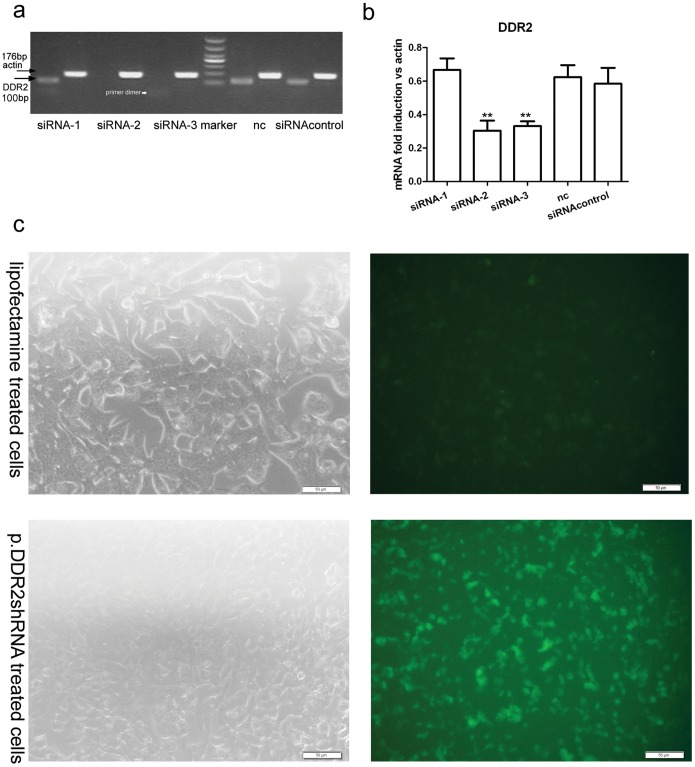 Screening of discoidin domain receptor 2 (DDR2) siRNA and transfection efficiency of short hairpin RNA plasmid (p.DDR2.shRNA). (a) RT-PCR analysis of mRNA level of DDR2 in siRNA-transfected immortalized rat hepatic stellate cell line HSC-T6. Arrows indicate the position of DDR2 and actin. (b) Quantification of mRNA level of DDR2 relative to that of actin. Data are mean ± SD (n = 3). **P