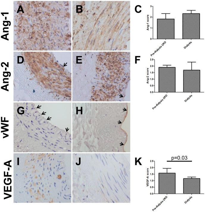 Immunolocalisation of vascular growth factors in arteries. Ang-1 was detected in the media of vessels from both pre-dialysis CKD (A) and dialysis patients (B); no differences in staining intensity were observed between the two groups (C). Ang-2 was immunodetected in both the media and endothelia (arrows) in pre-dialysis CKD (D) and dialysis (E) vessels with similar intensity (F). The endothelial later was also positive for von Willebrand factor (arrows, G and H). VEGF-A immunostaining was prominent in the media of pre-dialysis CKD vessels (I), but was significantly decreased in dialysis patients (J and K). All fields taken with ×40 objective.