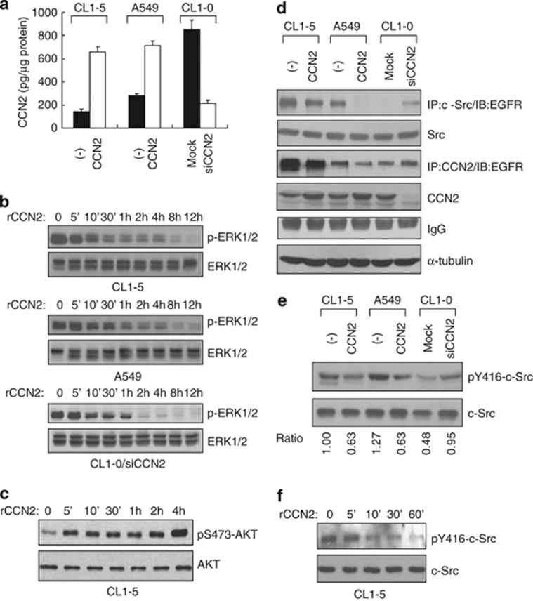 CCN2 inactivates the Src-MAPK pathway without attenuation of the AKT-PI3K pathway. ( a ) ELISA results of CCN2 secretion in three lung cancer lines. ( b ) A time course of rCCN2 treatment in MAPK-phosphorylation (p-ERK-1/2) inhibition in above three lung adenocarcinoma cell lines and CL1-0/siCCN2 clones. ( c ) Western blotting analysis of AKT phosphorylation on S473 in CL1-5 cells treated with rCCN2 for indicated times. ( d ) In CCN2-stable transfectants as indicated, after MG132 treatment, whole-cell lysates were prepared for immunoprecipitation with anti-Src or anti-CCN2 followed by immunoblotting with anti-EGFR. α -tubulin was an internal control. ( e ) Western blotting assay in phospho-Src protein expression in CCN2 transfectants. ( f ) rCCN2-treated CL1-5 cells and phospho-Src protein expression was detected by western blotting assay. Total Src is loading control