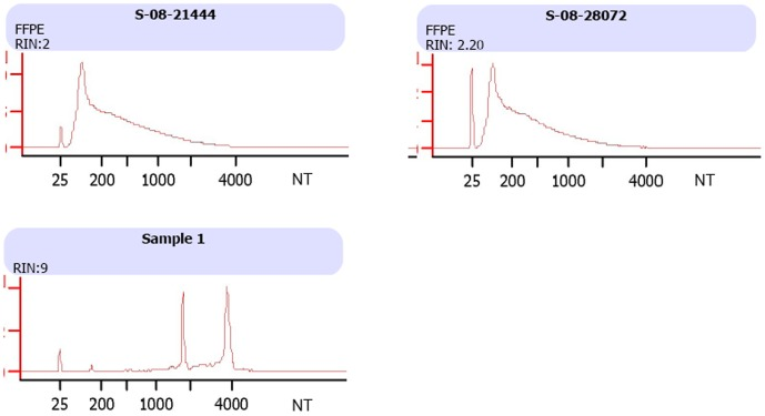 Bioanalyzer profiles of FFPE human peritumoral tissue total RNA. The total RNA was extracted from FFPE peritumoral tissues using Qiagen RNA extraction kit for FFPE samples or using Qiagen RNeasy Mini kit for human peripheral blood mononuclear cells (PBMCs). The upper panel shows the Bioanalyzer results of two FFPE RNA samples and the lower panel shows the profiling of RNA freshly extracted from human PBMCs. The Bioanalyzer profiles were obtained using Agilent RNA Nano LabChip.