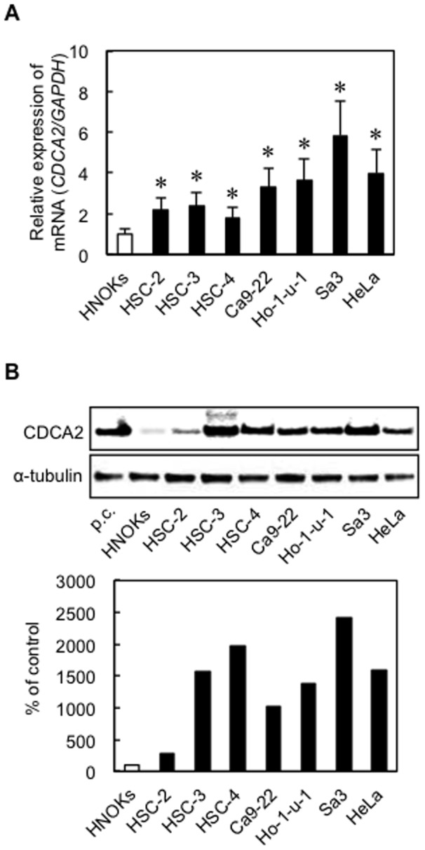 Evaluation of CDCA2 expression in OSCC-derived cell lines and the HeLa cell line. ( A ) Quantification of CDCA2 mRNA expression in OSCC-derived cell lines and the HeLa cell line by qRT-PCR analysis. Significant up-regulation of CDCA2 mRNA is seen in all cell lines compared with that in HNOKs (* P