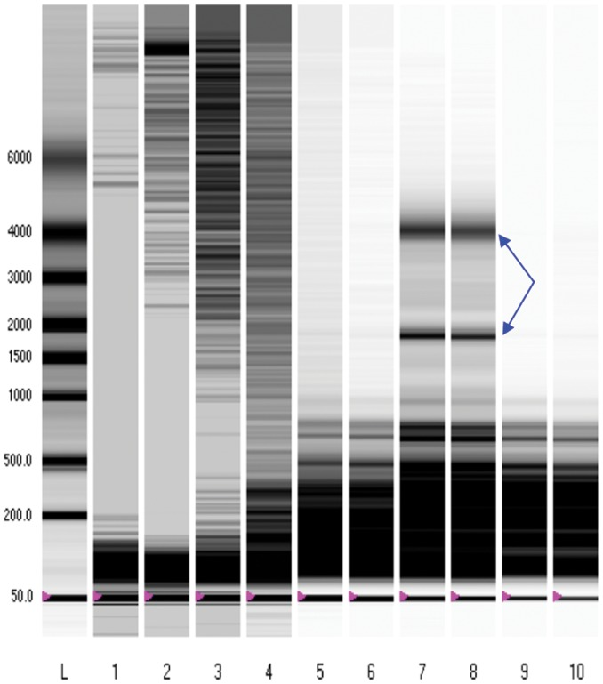 Electrophoresis of RNA extracted from breast milk samples. RNA integrity gels were employed in assessing for the integrity of RNA species. smRNA bands are shown, and ribosomal RNA identified with blue arrows. Lanes 1–4: Exosome precipitation with Exoquick system on whole fresh breast milk with a 2 hour precipitation (Lanes 1 2) versus precipitation overnight (Lanes 3 4). Lanes 5 6: Trizol reagent smRNA preparation from lipid breast milk fraction. Lanes 7–10: mirVANA smRNA preparation from lipid fractions of fresh (Lanes 7 8) and previously frozen (Lanes 9 10) breast milk.