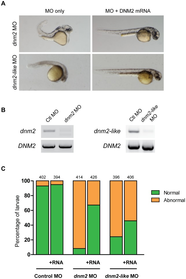 Human DNM2 RNA rescues dnm2 and dnm2-like morphant phenotypes. Rescue of dnm2 and dnm2-like morphants at 2 dpf. (A) Co-injection of human DNM2 RNA can rescue morphological abnormalities in both morphants. (B) RT-PCR of human DNM2 expression in dnm2 or dnm2-like morphants at 3 dpf. (C) The percentage of normal appearing larvae is significantly increased in both dnm2 and dnm2-like rescue conditions, but not in control larvae ( dnm2 p