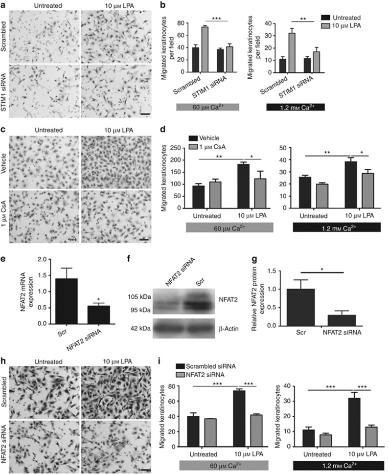 Lysophosphatidic acid (LPA)-induced keratinocyte migration requires STIM1, calcineurin activity, and sufficient levels of nuclear factor of activated T cell 2 (NFAT2). ( a – d , h , i ) Keratinocyte cultures were subjected to three-dimensional (3D) chemotactic migration assays, which were performed in medium containing 60 μℳ or 1.2 mℳ Ca 2+ . The average numbers of migrated cells are represented as bar graphs±SEM. Keratinocytes were treated with scrambled (scr) or STIM1-targeted small interfering RNA (siRNA) ( a , b ) or NFAT2-targeted siRNA ( h , i ) for 24 hours prior to 3D chemotactic migration assays. In both Ca 2+ conditions, 10 μℳ LPA significantly increased migration rates. RNA interference (RNAi)-mediated knockdown of STIM1 and NFAT2 resulted in a significant impairment of LPA-induced keratinocyte motility ( a , b , h , i , *** P