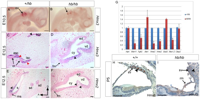 Expression analysis of Hmx3 and Hmx2 homeobox transcription factors in hb/hb and control littermates. A–B: Hmx3 expression in hb/hb mutants tested by whole mount RNA in situ hybridisation at E10.5, showing decreased expression of Hmx3 in the dorsal part of the otocyst of hb/hb mutants compared to littermate controls (arrows) C,D: RNA in situ hybridisation for Hmx3 at E12.5 in vestibular system sagittal sections. In control littermates, Hmx3 RNA is detected in the canal fusion plate (black arrowhead in C), semicircular canals (red arrowheads in C), and in the utricle and saccule (not shown) but its expression is always observed in non-sensory epithelial cells as previously reported (C). In hb/hb mutants we still detect Hmx3 mRNA in the vestibular non-sensory regions compared to the littermate controls (arrowhead in D). E,F: Hmx2 expression in vestibular system detected by in situ hybridisation on sagittal sections from hb/hb and littermate controls at E12.5. In control mice, as previously reported, Hmx2 shows a similar expression pattern to Hmx3 in the non-sensory cells and in the canal plate, in the utricle (arrow in E ) and in the canals (not shown). In hb/hb we detect Hmx2 expression only in a few cells in the non-sensory regions of the structurally abnormal vestibular system, compared to the littermate controls (arrowheads in F ). Scale bars: A,B, 0.5 mm; C–F, 100 µm. G: Quantitative real-time PCR of cDNA generated from RNA from E12.5 littermate embryo half heads. Only Hmx3, Hmx2 and Nkx1.2 mRNA levels are significantly downregulated in hb/hb compared to littermate controls. Error bars, s.d. Quantity normalised to Hprt1 levels. N = 3. *:p