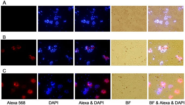 Immunofluorescence of P. vivax parasites and anti-MSP-3 antibodies. Immunofluorescence patterns in the sera of mice immunized with recombinant PvMSP-3α and PvMSP-3β (FP-3) on acetone-fixed P. vivax -infected erythrocytes (Pv-iE). The smears were incubated with pooled antisera (1∶100) from mice immunized with: ( A ) PBS emulsified in adjuvant, ( B ) PvMSP-3α, or ( C ) PvMSP-3β in Freund's Adjuvant. Antibody binding was detected with secondary <t>Alexa</t> 568-labeled antibody (red) and nuclei were visualized by <t>DAPI</t> staining (blue). BF, bright field.
