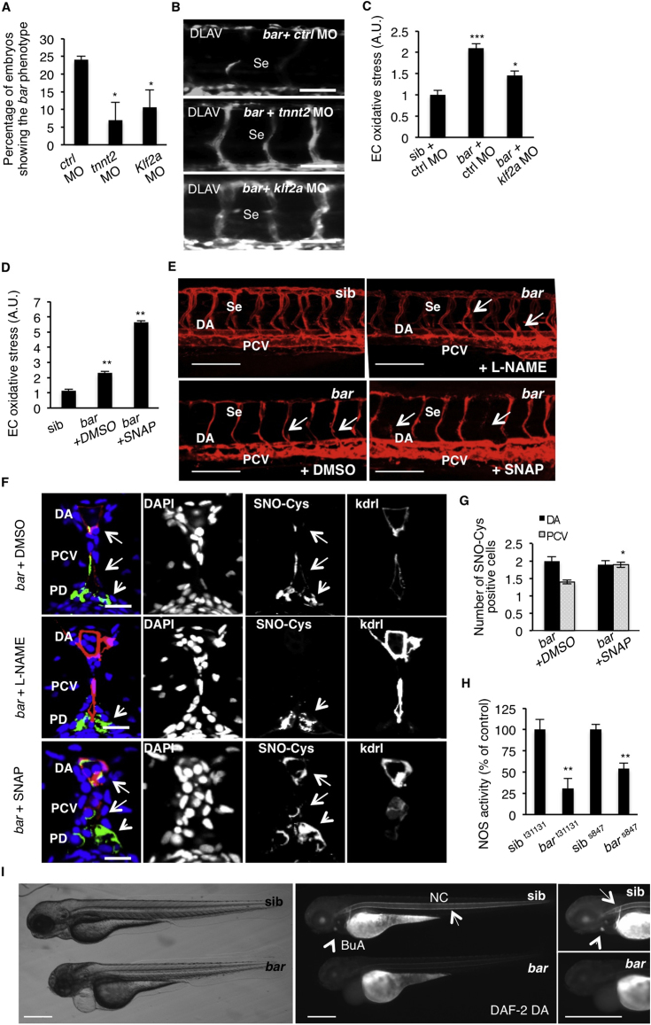 UBIAD1 Regulates a Blood Flow-Dependent NO Signaling and NO-dependent Oxidative Stress, Related to Figure 7 (A) Embryos from bar t31131 heterozygote intercrosses were injected at one-cell stage with tnnt2 morpholino ( tnnt2 MO) or Kruppel-like factor 2a morpholino ( klf2a MO) or control morpholino ( ctrl MO). Histogram shows the percentage of larvae showing the bar mutant phenotype at 72 hpf after injection. Compared to control, impairment of the blood flow-Klf2a pathway by morpholino injection significantly delayed the penetrance of the bar phenotype, evaluated as trunk vessels disintegration. Results are shown as a mean of n = 2 independent experiments for each condition. (B) Fluorescent micrographs of DLAV and Se of Tg(kdrl:GFP) s843 bar mutants at 72 hpf after injection of control morpholino (ctrl MO), tnnt2 morpholino ( tnnt2 MO), klf2a morpholino ( klf2a MO). Knockdown of tnnt2 and klf2a delayed Se and DLAV disintegration in bar mutants. Se, intersegmental vessels; DLAV: dorsal longitudinal anastomotic vessel. Scale bar, 75 μm. (C) Histograms show oxidative stress levels in endothelial cells (EC) derived from Tg(kdrl:GFP) s843 bar t31131 after klf2a morpholino injection. barolo mutants were injected with control morpholino (ctrl MO) or klf2a morpholino ( klf2a MO). Compared to control-injected embryos, klf2a MO-injected barolo ( bar ) mutants show reduced EC oxidative stress levels. Results are shown as a mean of n = 2 independent experiments for each condition. (D) Histograms show oxidative stress levels in endothelial cells derived from Tg(kdrl:GFP) s843 and bar t31131 ( bar ) mutant at 65 hpf after treatment with the NO donor, S-nitroso-N-acetyl-DL-penicillamine (SNAP) or DMSO as control. ROS levels in endothelial cells of zebrafish embryos were measured by flow cytometric analyses using the specific CellROX probe on Kdrl:GFP+ cells. NO overload in barolo cardiovascular tissues significantly enhances oxidative stress level. Results are shown as a mean of n = 2 independent experiments for each condition. (E) Representative confocal 3D projections of trunk vasculature between 10 th and 18 th somites of Tg(Kdrl:mCherry) uto2 barolo s847 ( bar ) mutant at 65 hpf. Embryos were treated from 48 hpf with the NO inhibitor, N- Nitro-L-arginine methyl ester hydrochloride (L-NAME; 500 μM) or NO donor, S-nitroso-N-acetyl-DL-penicillamine (SNAP; 100 μM) or equivalent volume of DMSO as control. Compared to DMSO-treated embryos, L-NAME treatment efficiently prevents cardiovascular failure as indicated by intact dorsal aorta (DA), posterior cardinal vein (PCV) and intersegmental vessels integrity (Se) (arrows). On the other hand, SNAP treatment accelerates oxidative stress and cardiovascular failure in bar mutant embryos. Scale bar, 150 μM. (F) Confocal transverse sections of Tg(kdrl:GFP) s843 bar t31131 trunk vasculature at the level of 10 th somite and stained for S-nitroso-cysteine, a biomarker of oxidative damage at 65 hpf. Confocal acquisitions are showed as single channel images and relative merged image: DNA (DAPI, blue), S-nitroso-cysteine (SNO-Cys, red), endothelium (Kdrl; green). bar t31131 were previously treated with the NO inhibitor, L-NAME (500 μM) or NO donor, SNAP (100 μM) or DMSO as relative control. Oxidative stress-positive cells are detectable in dorsal aorta (DA) and posterior cardinal vein (PCV) in bar t31131 (arrows) and SNAP-treated bar embryos. L-NAME treatment blocks oxidative stress in cardiovascular cells but not in pronephros suggesting a eNOS-dependent mechanism in oxidative stress caused by the loss of Ubiad1. DA, dorsal aorta; PCV posterior cardinal vein. Scale bar, 20 μm. (G) Histograms show numbers of endothelial cells in dorsal aorta (DA) and posterior caudal vein (PCV) positive for S-nitroso-cysteine (SNO-Cys) in bar mutant embryos treated with DMSO or the NO donor, SNAP (100 μM). Comparative confocal 3D projections were analyzed for SNO-Cys-positive endothelial cells in dorsal aorta and posterior cardinal vein. Results are shown as a mean of n = 3 independent experiments for each condition. (H) Histograms show NOS activity in protein extracts from barolo mutants ( bar ) and siblings (sib) at 72 hpf. Evaluation of NOS activity was based on conversion of [ 3 H]-L-arginine to [ 3 H]-L-citrulline. bar t31131 and bar s843 mutants show significant reduction in NOS activity compared to controls. These results indicate that loss of Ubiad1 impairs NOS enzymatic activity and therefore NO production. Results are shown as a mean of n = 2 independent experiments for each condition. (I) Representative micrographs of bar mutant embryos ( bar ) and siblings (sib) stained for nitric oxide (NO) with the green fluorescent probe 4,5 Diaminofluorescein Diacetate (DAF-2DA) at 72 hpf. NO production in the notochord (NC; arrows) and bulbus arteriousus (BuA; arrowheads) are evident in sibling but not in bar mutants. Scale bar, 300 μm. BuA, bulbus arteriosus; NC, notochord.All data are means ± SEM; ∗ p