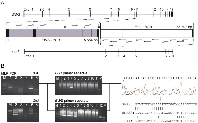 Genomic fusion site sequencing. (A) Genomic organization of the EWS and <t>FLI1</t> genes and corresponding breakpoint cluster regions (BCR). Nested primer sets for der22 are shown as double headed arrows. (B) Representative breakpoint sequencing workflow. Left: Gel electrophoresis of MLR-PCR products from two tumor samples in lane 1 and 2 (lane 3 negative control DNA; lane 4 ddH 2 O; lane 5 positive control DNA; M = DNA ladder). Center: Gel electrophoresis of single long-range PCR products from 1 st round MLR-PCR product of sample 1 (lane 1–11; lane 12 positive control) to identify FLI1 and EWS primers next to the fusion sites and to reduce amplification product size for direct sequencing. Right: Sequencing of the shortest amplification product and alignment to EWS and FLI1 reference sequences.