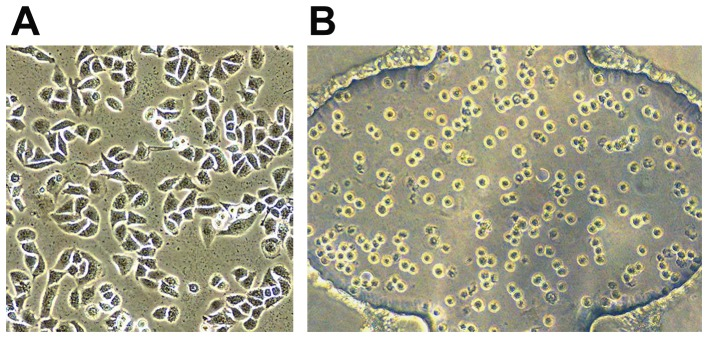 Morphology of A549 cells on 2D surfaces and in 3D matrix. (A) A549 cells were cultured on 2D surfaces. Cells exhibited to be flat with several protrusions. (B) A549 cells were cultured in 3D matrix. A majority of the cells were round without protrusions. Magnification: ×200.