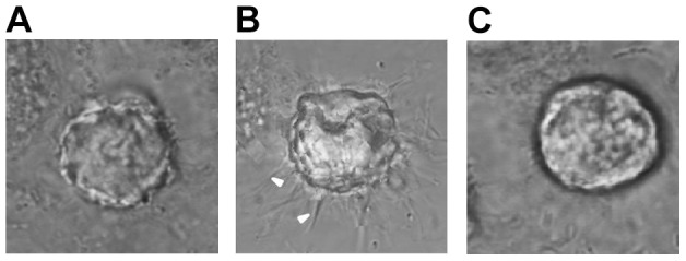 Actual invadopodia formation of A549 cells in control group (A), EGF group (B), and GM6001/EGF group (C) in 3D extracellular matrix in the microfluidic device with confocal system. Invadopodia could be obviously induced by EGF in (B), while this induction could be inhibited by GM6001 in (C). White arrowheads represented invadopodia. Magnification: ×1200.