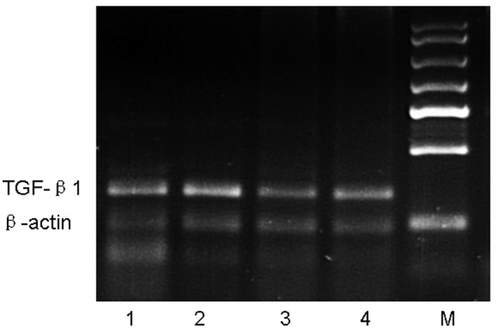 <t>RT-PCR</t> analysis of <t>TGF-β1</t> mRNA in lung tissue. Mice were sacrificed 24 h after the final OVA challenge, and mRNA was then isolated and subjected to semi-quantitative RT-PCR analysis of TGF-β1. Expression of β-actin was used as a loading control. Lane M, marker; lane 1, control group; lane 2, asthmatic group; lane 3, astragalus extract-treated group; lane 4, budesonide-treated group.