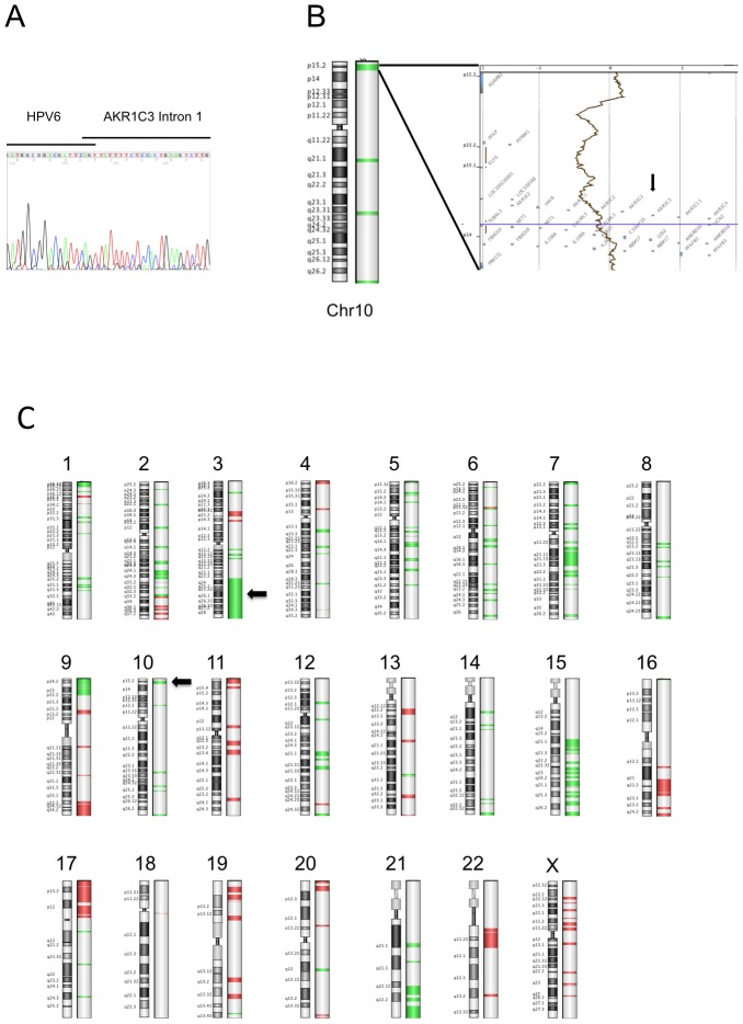 Genetic analysis of the tumor. ( A ) Sequence analysis of APOT PCR product. Analysis of the chimeric HPV/AKR1C3 mRNA showed that it is spliced from the HPV6 splice donor site at nucleotide 745 to intron one of the AKR1C3 gene. ( B, C ) ArrayCGH analysis. ( B ) Large scale ideogram of chromosome 10. AKR1C3 is marked by an arrow. ( C ) Overwiev of all chromosomes. Arrows indicate 3q loss and AKR1C3 integration site on chromosome 10 and a large deletion on chromosome 3. Green colored regions indicate DNA loss. Algorism z-score, Threshold 2.5.