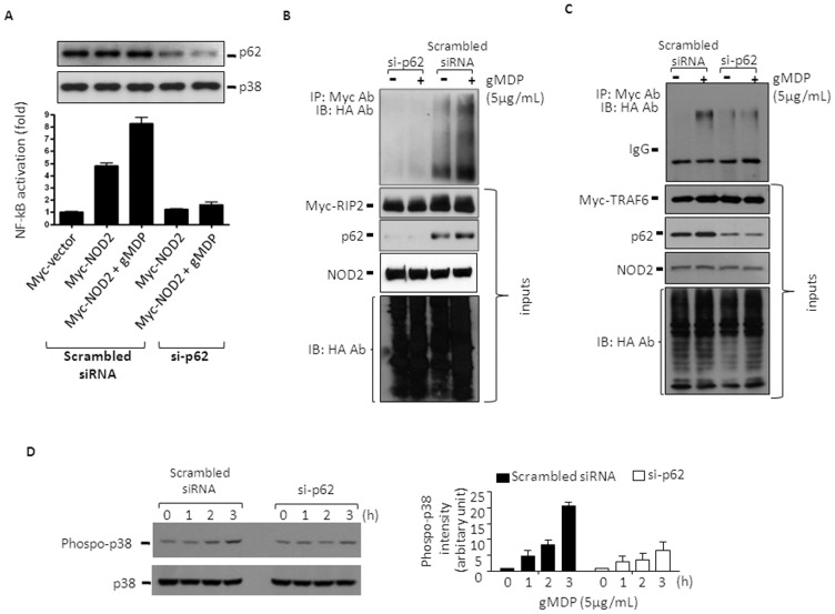 p62 is required for the activation of NF-κB and p38 MAPK, and ubiquitination of RIP2 and TRAF6. A . HEK293T cells were transfected with pCMV-Myc-NOD2 and NF-κB luciferase reporter constructs in the presence of scrambled or p62-targeting small interference RNAs (si-p62). Cells were then treated with gMDP (5 µg/mL) for 4 h and NF-κB activity was measured. Data are expressed as the fold of luciferase activity ± SD (n = 3). B-C . HEK293T cells stably expressing NOD2 were first treated with scramble siRNA or si-p62 for 24 h, and then transfected with expression vectors for HA-ubiquitin (HA-Ub) and pcDNA3-Myc-RIP2 or pCMV-Myc-TRAF6 for another 24 h. After treating the cells with gMDP (5 µg/mL) for 4 h, RIP2 (B) or TRAF6 (C) was immunoprecipitated with Myc antibodies from total cell lysates and the immune complexes were resolved by SDS-PAGE followed by immunoblotting against HA. Myc-RIP2 or Myc-TRAF6, NOD2 and HA-ubiquitin were analyzed by immunoblot as the inputs (bottom panels). p62 protein levels were also measured by immunoblot. Data shown are representative images of 3 independent experiments. D , HEK293T cells stably expressing NOD2 were first treated with scramble siRNA or si-p62 for 24 h, and then treated with gMDP (5 µg/ml) for the times indicated. Activation of p38 was analysed through immunoblotting against tyrosine phosphoryled p38. The ImageJ (NIH) program was used for densitometry analysis of phosphor-p83 bands and data were expressed as mean ± S.D. (n = 3).
