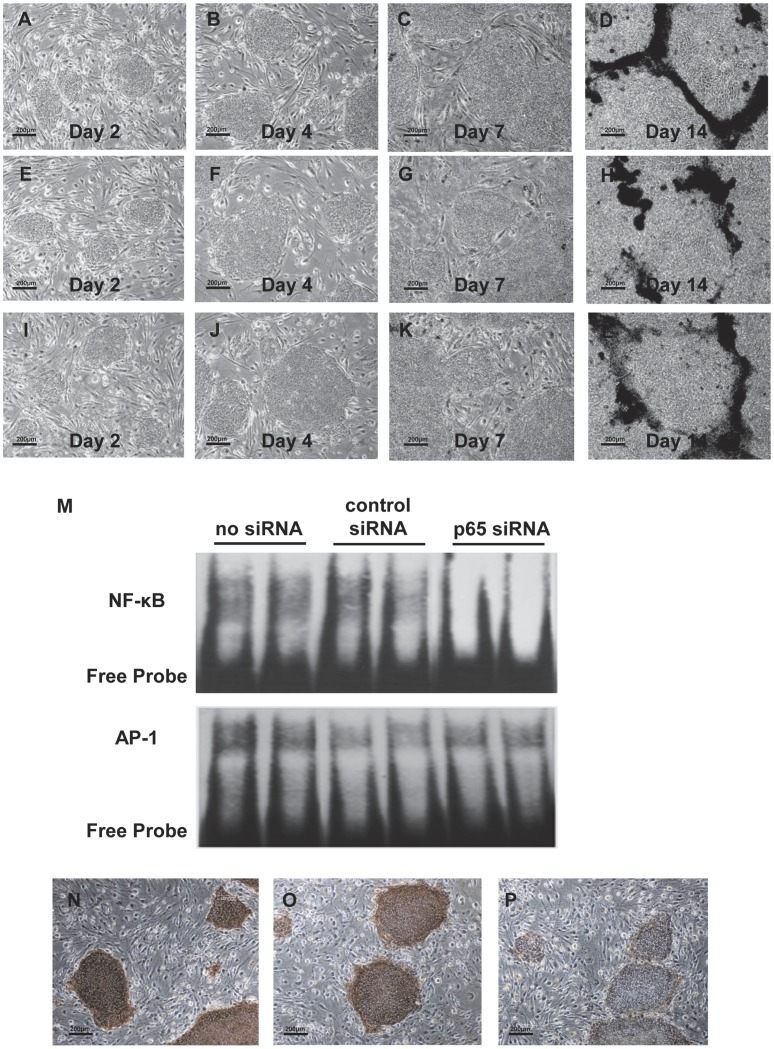 Specific knockdown of NF-κB activity by treatment with p65 siRNA. Representative photomicrographs of human iPS cells: no treatment (A–D), treatment with control siRNA (E–H), treatment wirth p65 siRNA (I–L) (original magnification, x200). A representative EMSA shows NF-κB and AP-1 binding activity in human iPS cells treated with siRNA (M). Representative photographs of alkaline phosphatase staining of human iPS cells treated with siRNA (N–P) (original magnification, x200). No treatment (N), treatment with control siRNA (O), treatment with p65 siRNA (P).