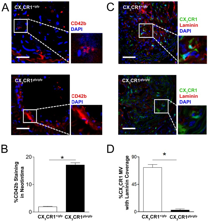 Functional deficiency of CX 3 CR1 results in leaky microvessel phenotype in experimental plaque. Representative cross sectional images of carotid artery plaques from CX 3 CR1 +/gfp and CX 3 CR1 gfp/gfp mice stained with CD42b (Platelets; Red) (A) or laminin (Basement membrane; Red) (C) and DAPI (Nucleus; Blue). B, Significantly increased staining for platelet CD42b was observed in the neointimal interstitial space in CX 3 CR1 gfp/gfp mice compared to competent CX 3 CR1 +/gfp mice (Scale bar: 50 µm). D, A significantly greater number of CX 3 CR1 positive microvessels were covered by basement membrane laminin in CX 3 CR1 +/gfp mice compared to CX 3 CR1 gfp/gfp mice (insets in panel C show GFP and laminin co-staining present in CX 3 CR1 +/gfp but not CX 3 CR1 gfp/gfp mice). Data is represented as mean ± SEM of 15 plaque sections/mice (n = 4 independently performed experiments); * denotes p
