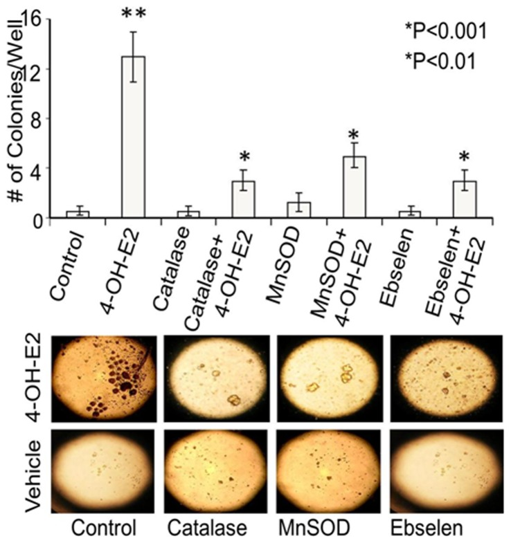 ROS modifiers inhibited estrogen-induced colony formation. For investigating inhibition of 4-OH-E2-induced cell transformation by ROS modifiers, MCF-10A cells were transfected with 100 MOI adenovirus expressing catalase or MnSOD or treated with an antioxidant Ebselen (40 uM). Cells overexpressing catalase or MnSOD or treated with Ebselen were exposed to a carcinogenic regimen of estrogen as described in the legend of figure 2 . Anchorage independent growth was assessed in soft agar after 21 days. Images were acquired by using an Olympus C-5060 digital camera attached to the Nikon TE2000U inverted microscope with a 4x objective (bottom panel shows representative pictures of colonies in soft agar in both 2A and 2B). Colony efficiency was determined by a count of the number of colonies > 63 um in diameter and data expressed as mean of five wells +/− S.D. *P