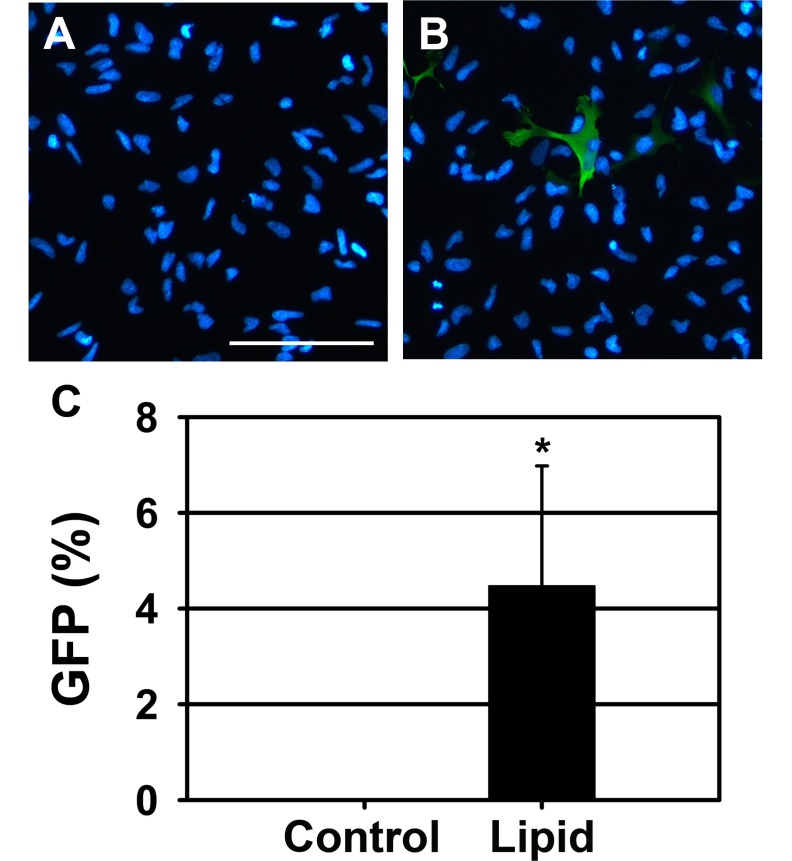 Transfection efficiency of rat NSCs 48 hours after lipid-mediated transfection. (A, B) Representative merged images of NSCs transfected with (A) lipid alone and (B) lipid with GFP vector. GFP was visualized by immunostaining with anti-GFP primary antibody and Alexa Fluor 488-conjugated secondary antibody (green). Nuclei were visualized by DAPI staining (blue). Scale bar=100 µm. (C) Quantification of the immunostaining data. The ratio of GFP-positive cells to the total cells was calculated and presented. The data are shown as mean±S.D. ( * p