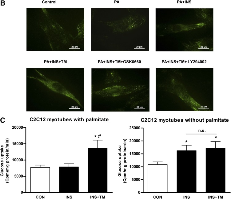 TM effects insulin-stimulated Glut4 translocation and expression and glucose uptake in insulin-resistant C2C12 myotubes. A and B : TM enhanced insulin-stimulated Glut4 translocation and expression in palmitate-free (control [CON]) and palmitate-treated (PA) C2C12 myotubes, as shown by immunofluorescence, which was attenuated by PPARδ and PI3K inhibitors. The green fluorescence indicates Glut4. Nuclei in all groups were stained in blue with DAPI. The images were collected using a Nikon TE2000-U inverted fluorescence microscope ( A ) and total internal reflection microscopy (TIRFM) ( B ). Experiments were repeated three times. C : TM increased insulin-stimulated glucose uptake in palmitate-treated C2C12 myotubes. TM did not increase insulin-stimulated glucose uptake without palmitate exposure. The [ 3 H]-2-deoxyglucose uptake assays were performed in C2C12 myotubes. * P