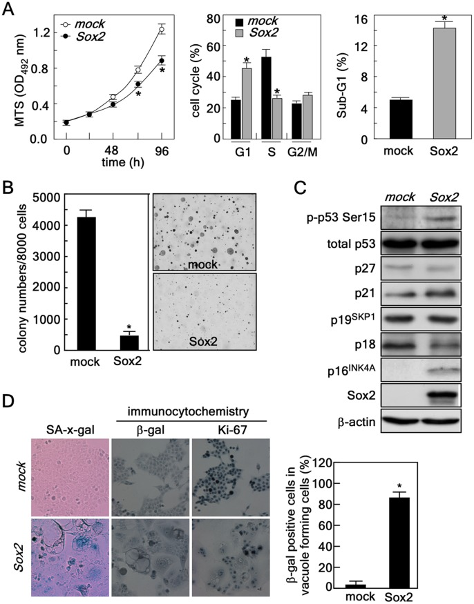 Sox2-induced autophagy causes senescence in HCT116 colorectal cancer cells resulting in suppressed proliferation and decreased anchorage-independent colony growth. ( A ) Left panel , effect of Sox2 expression on cell proliferation. HCT116 cells (2×10 3 ) stably expressing mock or Sox2 were seeded in 96-well plates and proliferation was analyzed by MTS assay at 24 h intervals up to 96 h (*, p