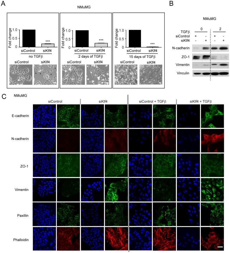Klf4 maintains epithelial morphology and prevents EMT. ( A ) NMuMG cells were transfected with either control siRNA (siControl) or Klf4-specific siRNA (siKlf4) in the absence as well as in the presence of TGFβ for 2 or 15 days, as indicated. The levels of Klf4 mRNA were determined by quantitative RT-PCR and the morphology of the cells evaluated by phase contrast microscopy. Filopodia and membrane protrusions are marked with closed arrowheads. Size bar, 100 µm. ( B ) Immunoblotting analysis of the expression of the epithelial marker ZO-1 and the mesenchymal markers N-cadherin and Vimentin during TGFβ-induced EMT in control NMuMG cells (siControl) and Klf4 depleted cells (siKlf4). ( C ) Immunofluorescence microscopy analysis of changes in the localization and expression levels of EMT markers during EMT. NMuMG cells transfected with either control siRNA (siControl) or with siRNA against Klf4 (siKlf4) were left untreated or treated with TGFβ for 2 days and stained with antibodies against the epithelial markers E-cadherin and ZO-1, against the mesenchymal markers N-cadherin and vimentin, against paxillin to detect focal adhesion plaques, and with phalloidin to visualize the actin cytoskeleton. Size bar, 50 µm. Statistical values were calculated by using a paired, two-tailed t-test and experiments were performed at least three times. *** = p≤0.001.