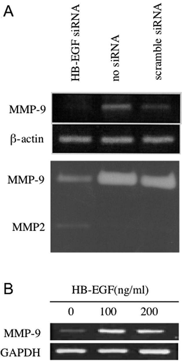 Heparin-binding epidermal growth factor-like growth factor (HB-EGF) upregulates MMP-9 expression. (A) MMP-9 mRNA expression and collagenase activity in siRNA-treated HSC3 cells was determined by RT-PCR and zymography, respectively. The MMP-9 mRNA level was reduced in HB-EGF siRNA-treated cells compared with the levels in control no-siRNA and scrambled-siRNA-treated HSC3 cells. (B) The addition of s-HB-EGF to the culture medium upregulated MMP-9 mRNA levels in HSC3 cells.