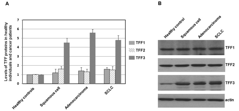 Immunoblots of TFF1, TFF2 and TFF3 in healthy individuals and lung cancer patients. (A) Total proteins were extracted from lung tissues, separated on SDS-PAGE gels, and subjected to immunoblot analyses. The primary antibodies against TFF1, TFF2, TFF3 and actin were purchased from Santa Cruz Biotechnology (USA). Secondary antibodies were donkey anti-goat IgG-HRP (cat# sc-2020, 1:5,000, Santa Cruz Biotechnology) and goat anti-mouse IgG-HRP (cat# sc-2005, 1:10,000, Santa Cruz Biotechnology). Bound antibodies were detected using the ECL system (Pierce Biotechnology). The size of the TFF proteins was approximately 7–10 kDa. Histograms show mean normalized optical density (OD) of TFF protein bands relative to the OD of the actin band from the same individual. Error bars show the standard error of the mean (SEM) (P