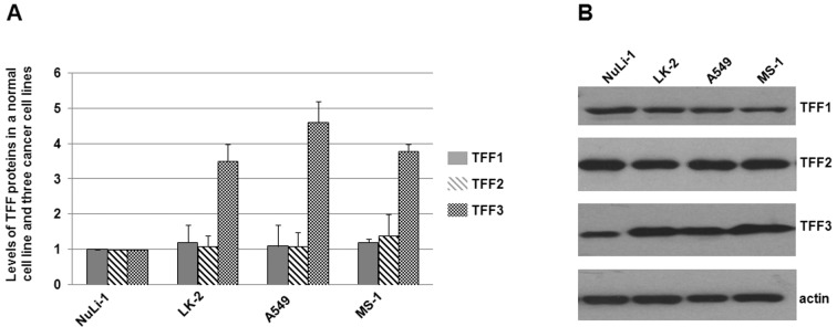 Immunoblots of TFF1, TFF2 and TFF3 in a normal cell line and three lung cancer cell lines. (A) Total proteins were harvested, separated on SDS-PAGE gels, and subjected to immunoblot analyses. The primary antibodies against TFF1, TFF2, TFF3 and actin were purchased from Santa Cruz Biotechnology (USA). Secondary antibodies were donkey anti-goat <t>IgG-HRP</t> (cat# sc-2020, 1:5,000, Santa Cruz Biotechnology) and goat anti-mouse IgG-HRP (cat# sc-2005, 1:10,000, Santa Cruz Biotechnology). Bound antibodies were detected using the ECL system (Pierce Biotechnology). The size of the TFF proteins were approximately 7–10 kDa. Experiments were repeated more than 3 times. Histograms show mean normalized OD of TFF protein bands relative to the OD of actin band. Error bars show standard error of the mean (SEM) (P