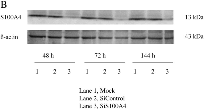 S100A4 gene knockdown by siRNA transfection in SW620 cells. (A) By real-time PCR, S100A4 mRNA expression was significantly suppressed at 36 h post transfection of S100A4 siRNA into SW620 cells compared with mock and siControl of SW620 cells. Data represent the mean ± standard deviation (SD) of three independent experiments. * Specific comparison between the siS100A4 group and mock control, siControl group (P